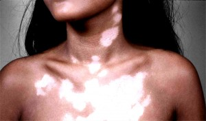 The-Best-Vitiligo-Treatment-to-Cure-Vitiligo-Fast
